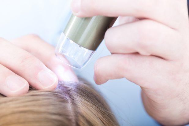 Kopfhautanalyse, kopfhautkamera, kopfhautgesundheit, kopfhaut, gesunde kopfhaut, kopfhautprobleme, yelasai